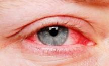 Почему после бассейна с перекисью водорода красные глаза и что с этим делать?